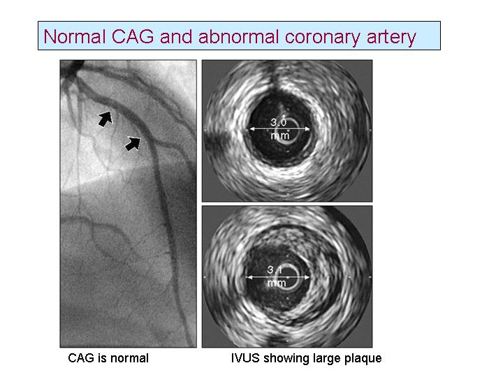 What Is A Normal Coronary Angiogram What Is A Normal Coronary