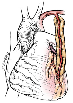 Why is LIMA graft superior to saphenous venous graft in CABG ? (1/2)