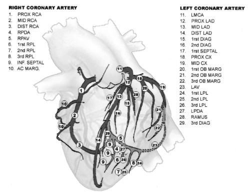 Lad in heart anatomy