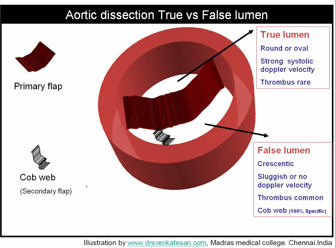 aortic-dissection-4 | Dr.S.Venkatesan MD