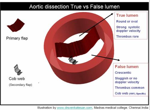 aortic-dissection-4