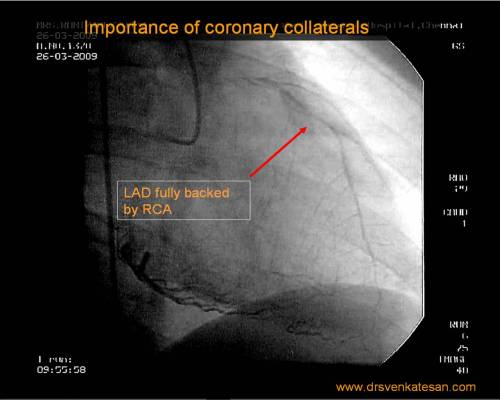 coronary-collateral