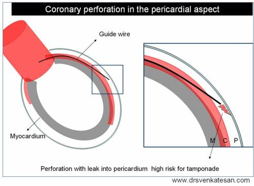 coronary-perforation