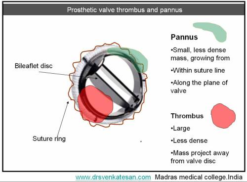 pannus-2