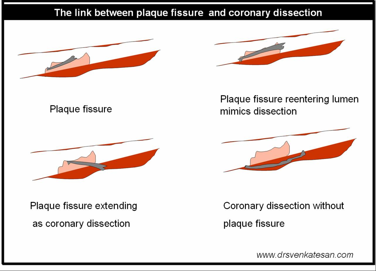what is the difference between plaque fissure and coronary