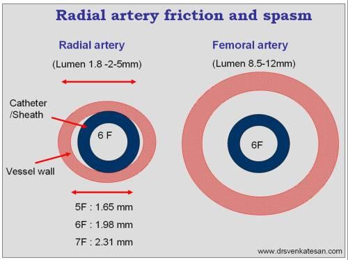 radial-artery-spasm