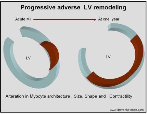 lv-remodeling