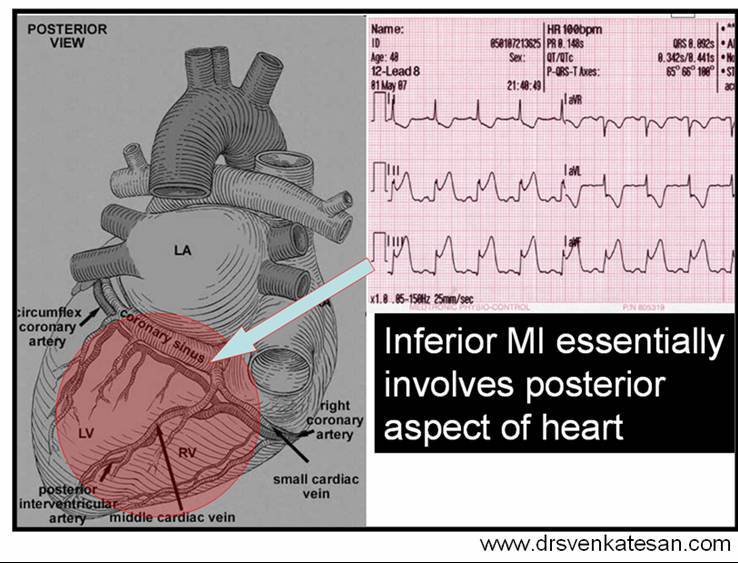 Why Inferior Mi Is Considered Inferior Drsnkatesan Md