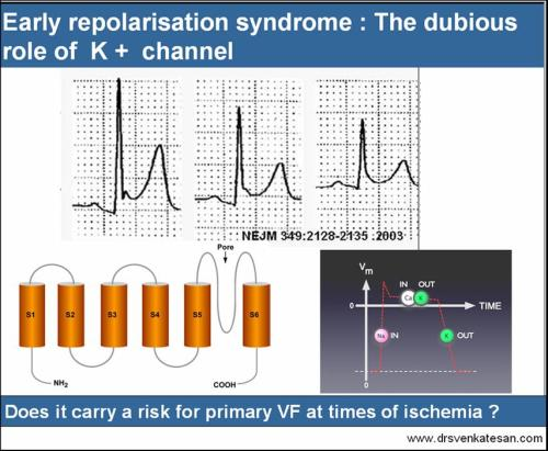 early repolarisation syndrome ers ecg  primary vf