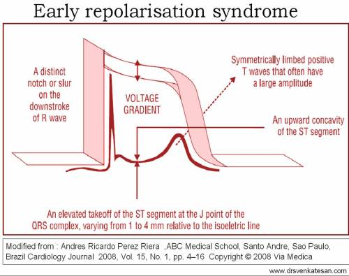 ers early repolarisation syndrome