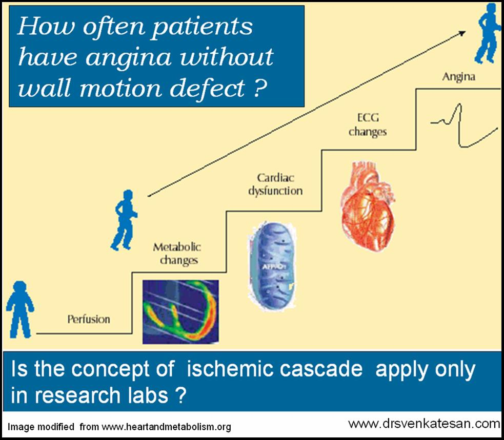 Myocardial functional preservation during ischemia: Influence of beta blocking agents