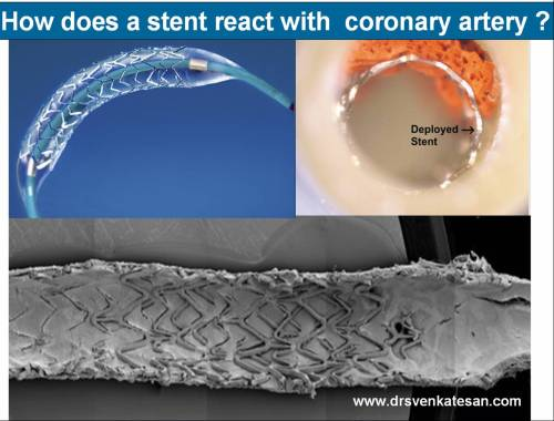 pci stent coronary angiogram thrombosis des