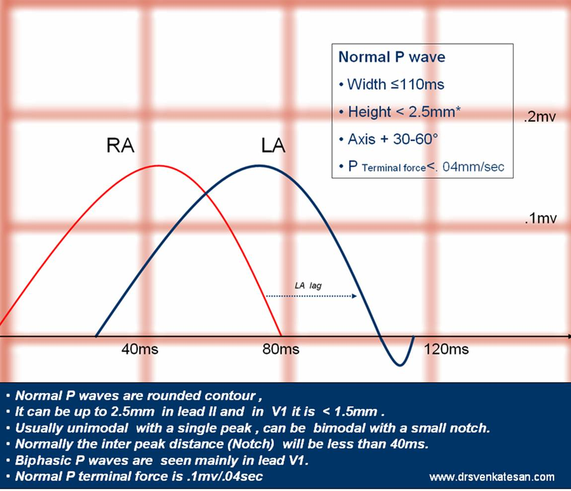 """Why P wave becomes """"tall"""" in RA enlargement and """"wide"""" with LA ..."""