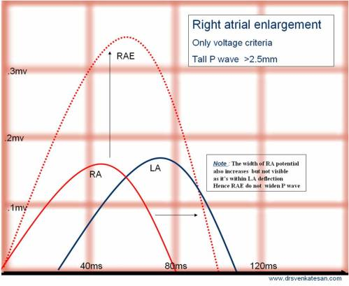 rae right atrial enlargement ecg tall p p pulmonale p tricuspidale