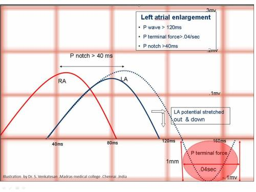 right and left atrial enlargement how to differentiate lae rae