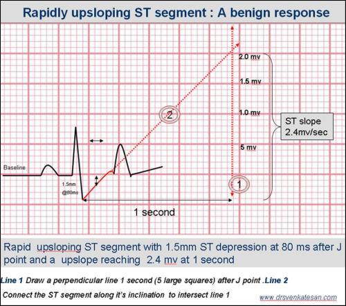 upsloping st segment tmt st slope ecg
