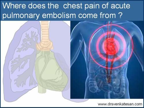 pulmonary embolism chest pain dvt d dimer ventilation perfusion
