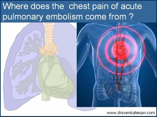 pulmonary embolism chest pain dvt d dimer ventilation perfusion