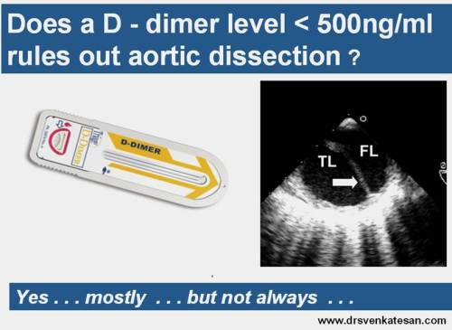 d dimer aortic dissection false lumen