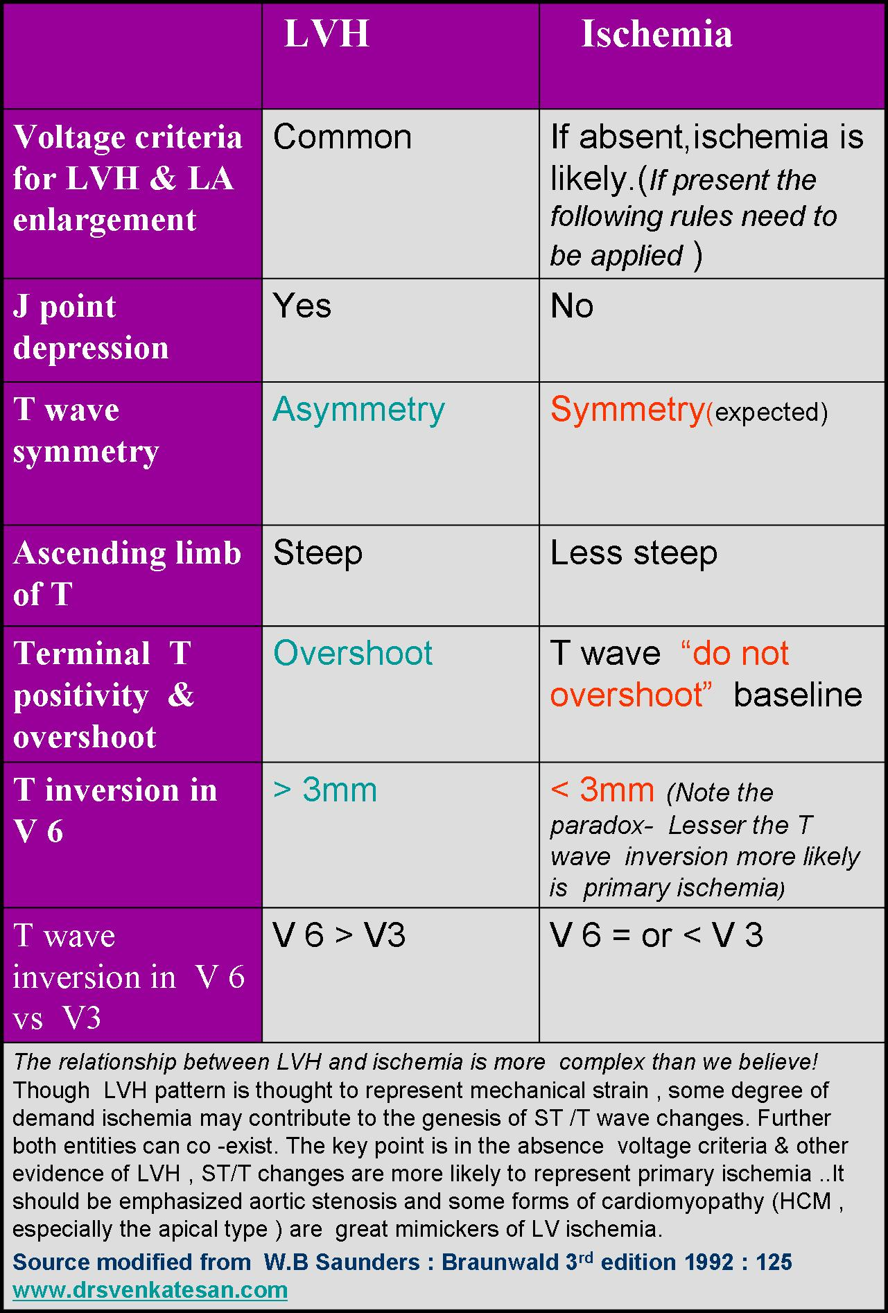 how to remember ecg waves