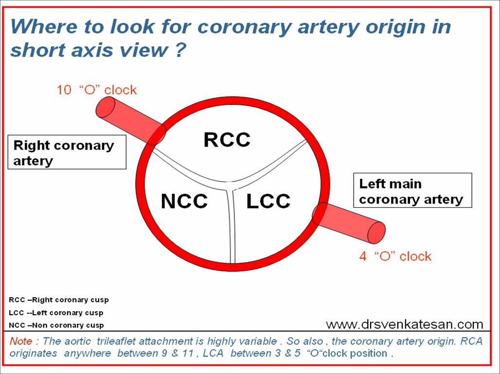 Simple tips in echocardiography : Where to look for coronary artery ...
