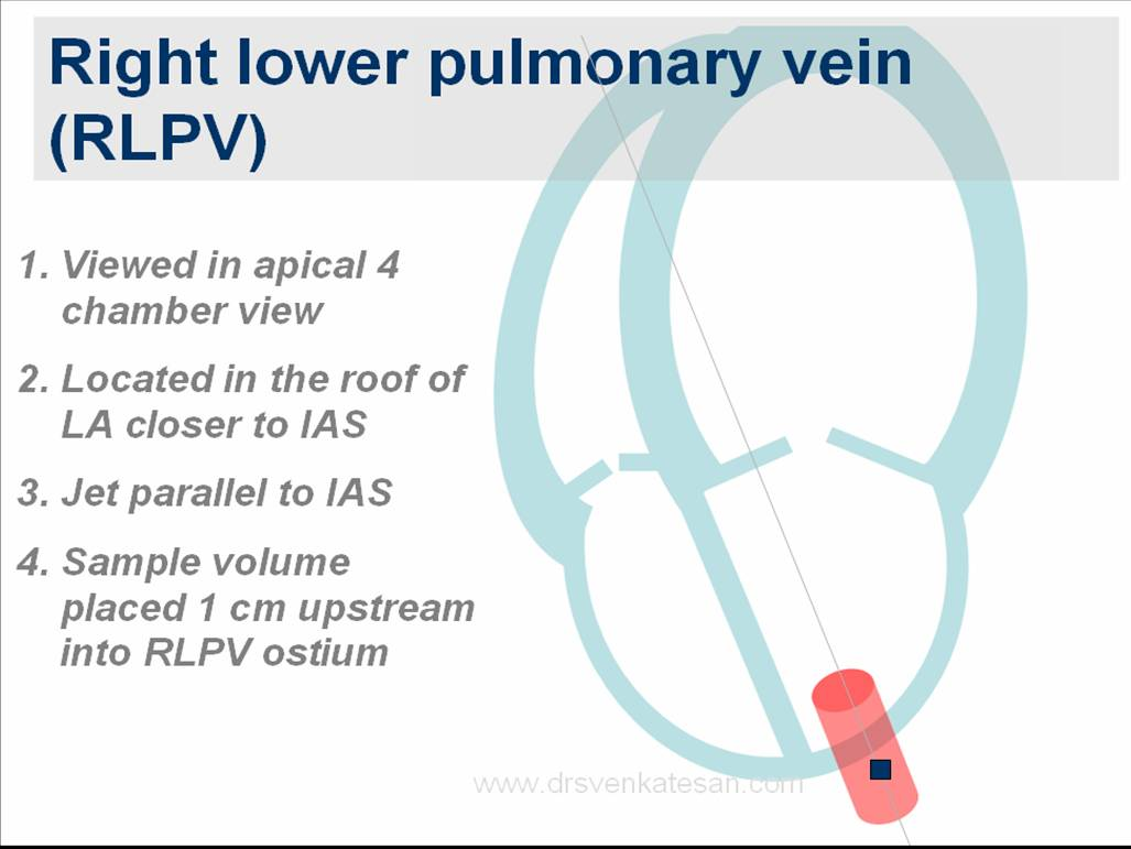 How to identify pulmonary veins in transthoracic echocardiography ...
