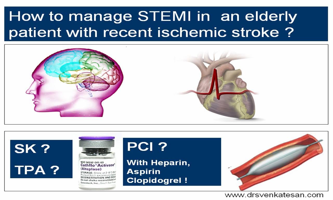 stemi with stroke | Dr.S.Venkatesan MD