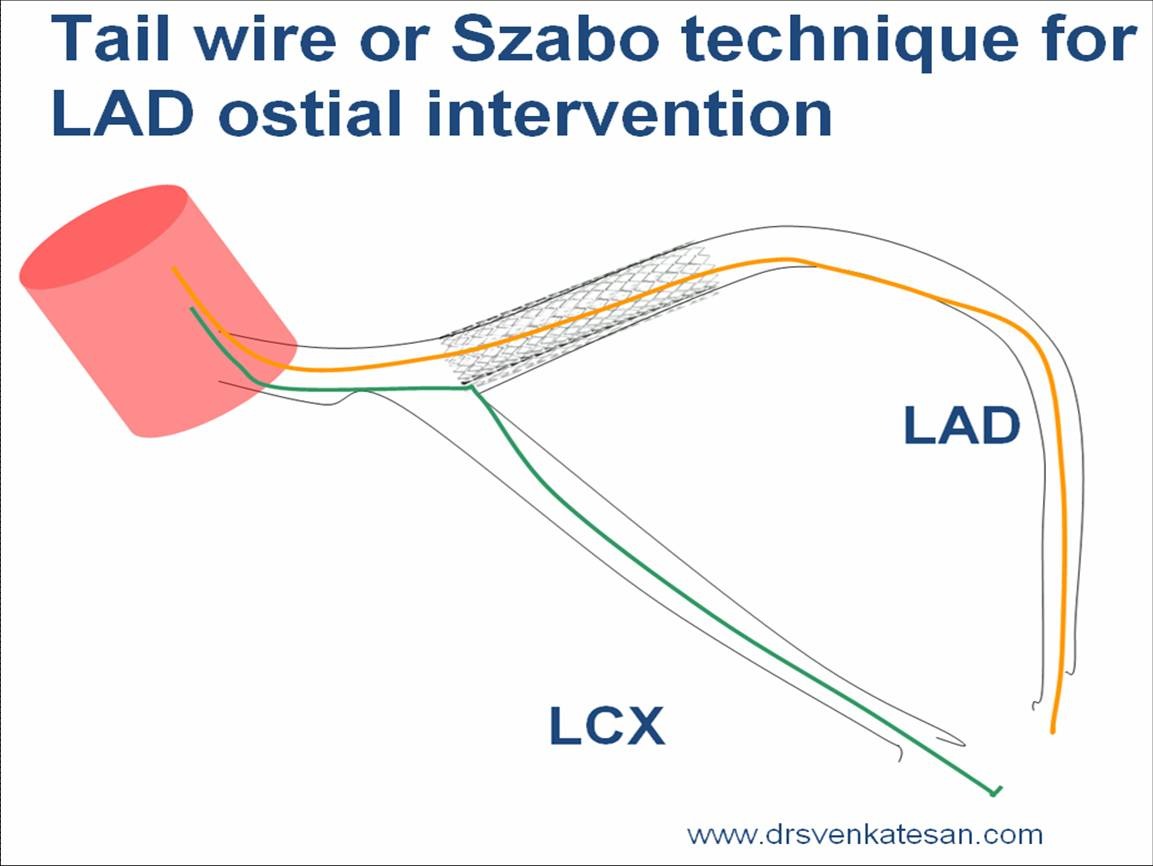 Ostial Circulation Diagram - Circuit Connection Diagram •