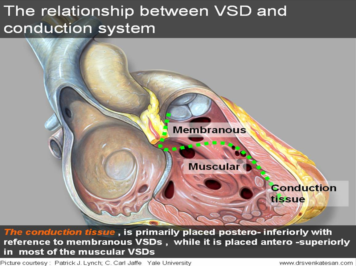 How Does Vsd Affect The Conduction System Of Heart Which Is