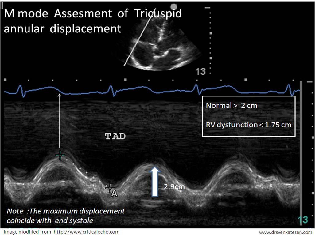 m mode of tricuspid valve | Dr.S.Venkatesan MD