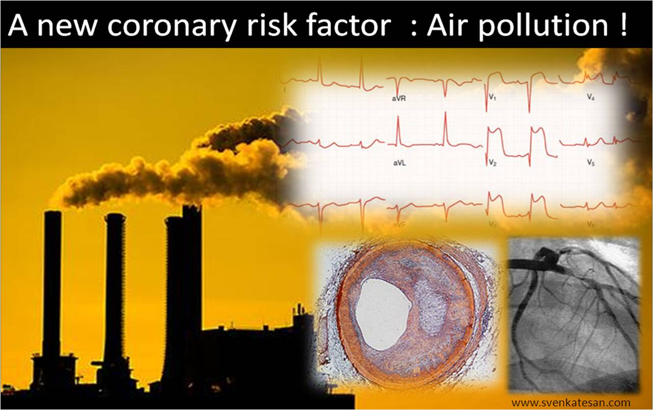 the causes and contributing factors of air pollution
