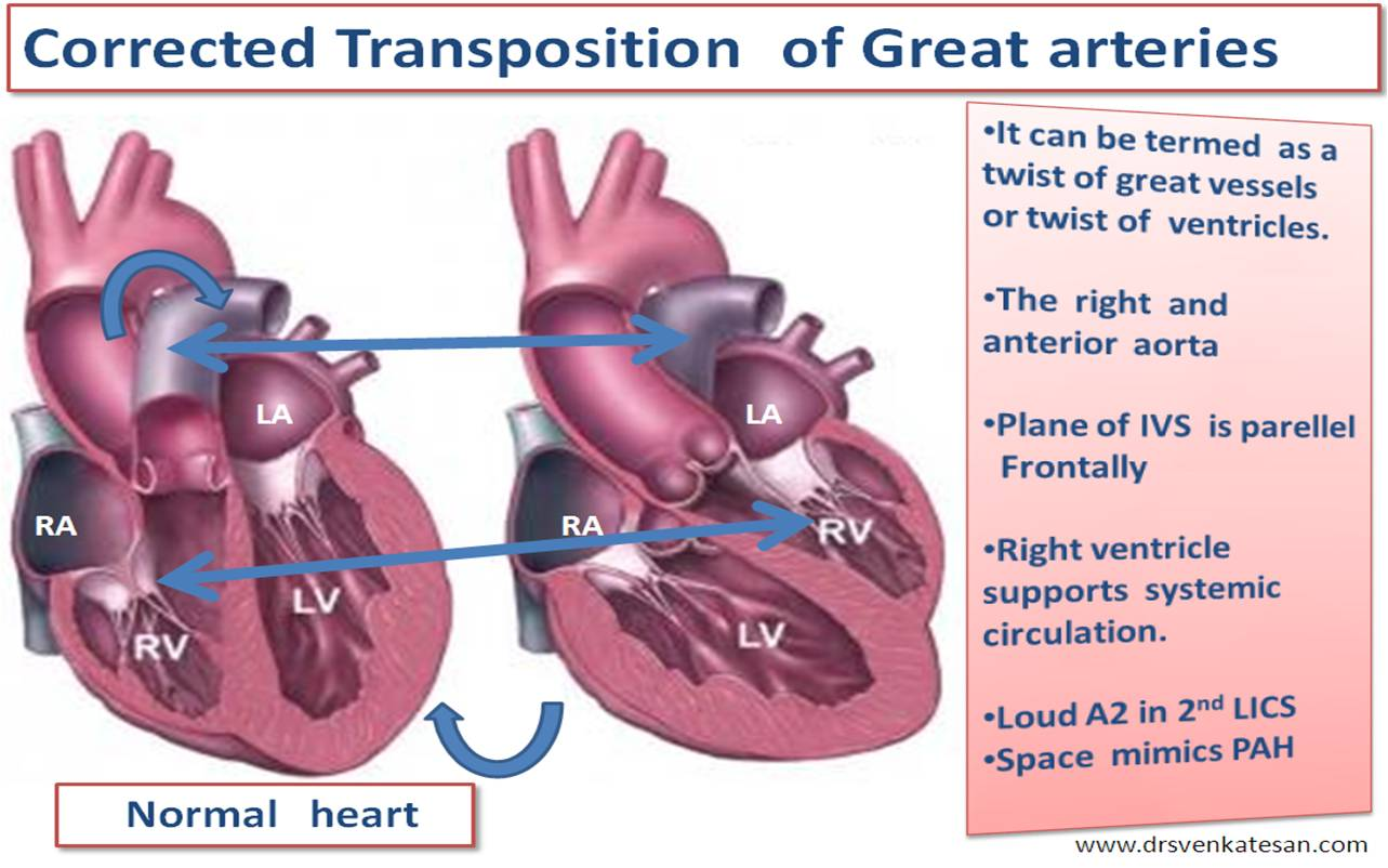 pediatric complex congenital heart disease