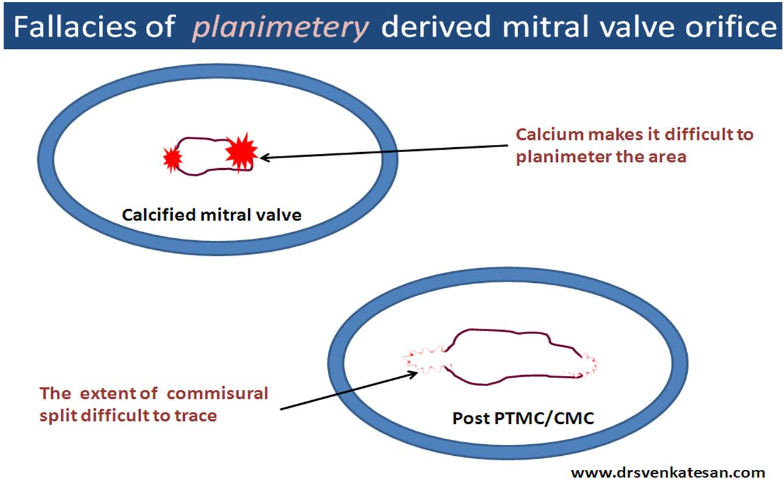 post ptmc mitral valve area | Dr.S.Venkatesan MD