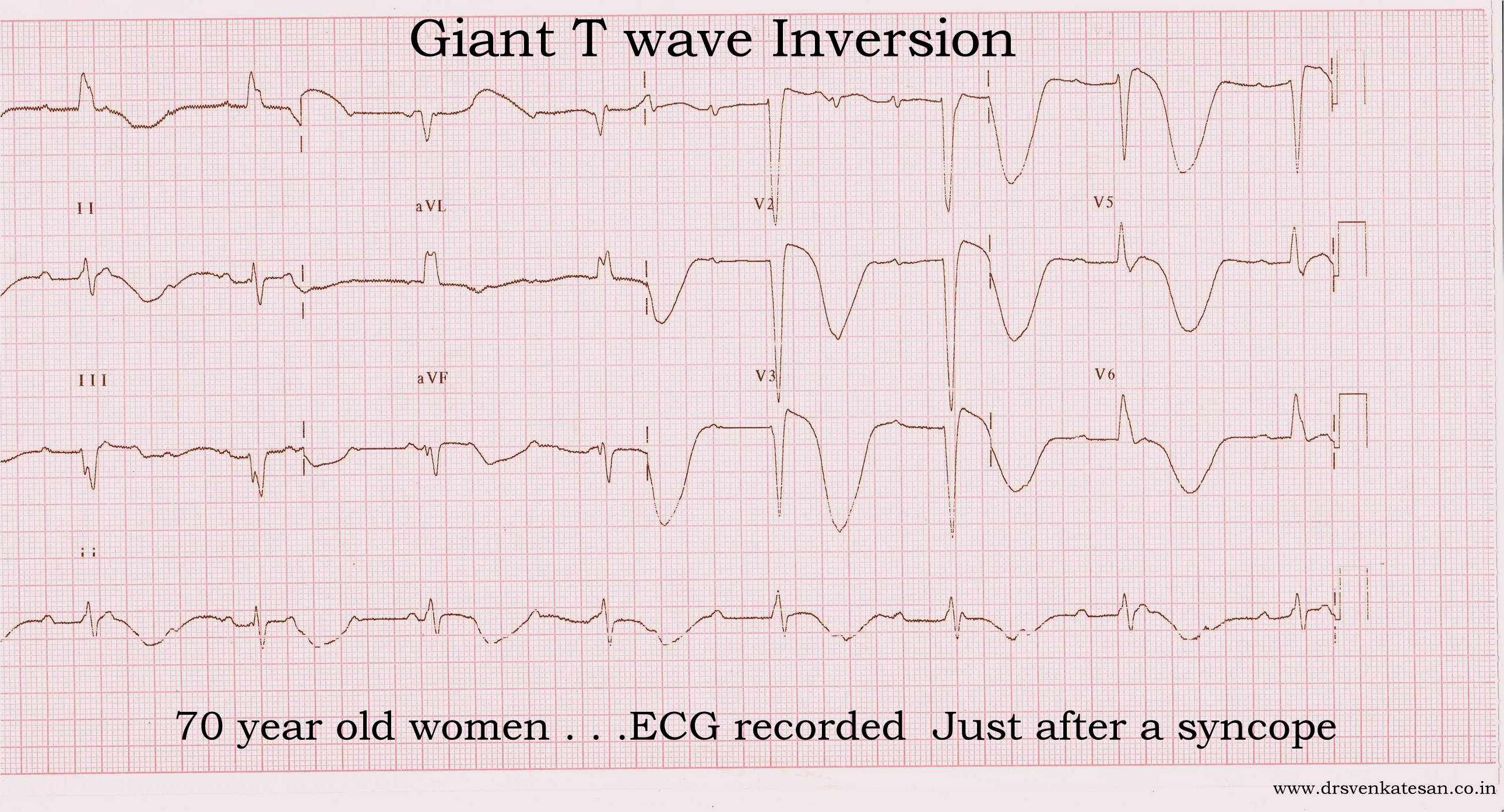 deep t wave inversion | Dr.S.Venkatesan MD