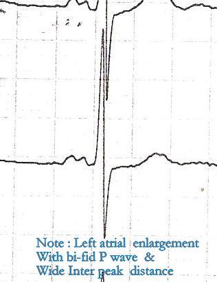How To Miss Left Ventricular Hypertrophy In ECG Dr S Venkatesan MD