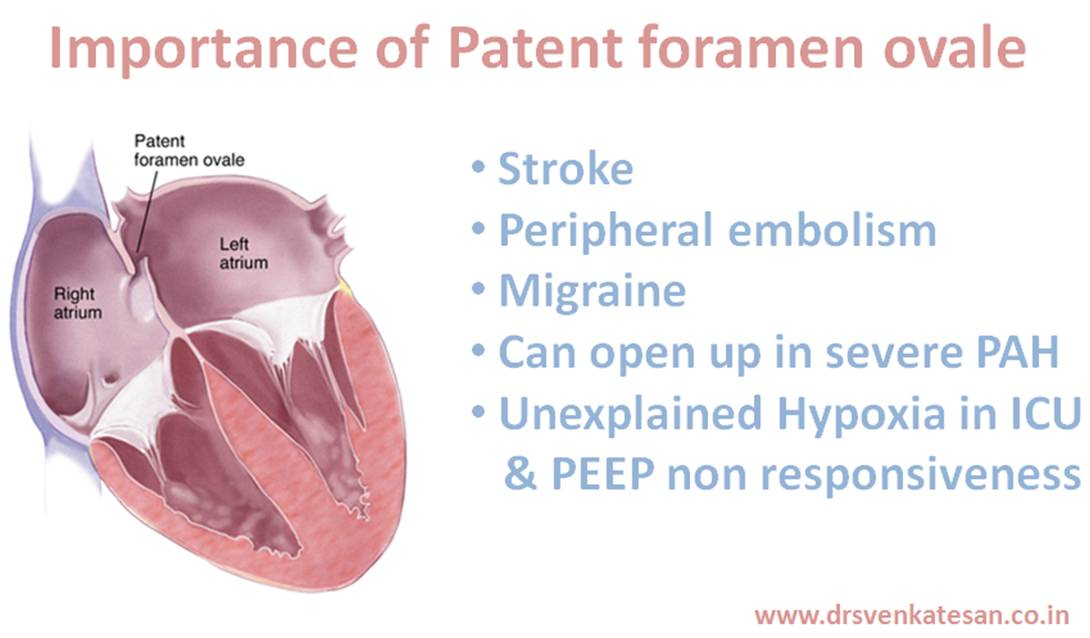 Patent foramen ovale in adult