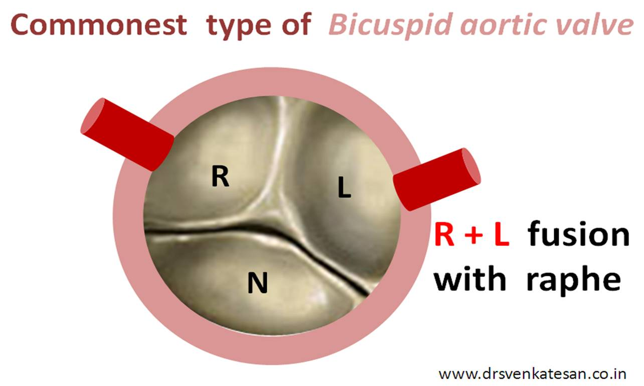 Which is the commonest type of bicuspid aortic valve ? | Dr.S ...