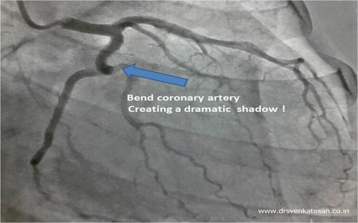 Optical Illusions In Coronary Angiogram A Black Pearl Inside Lcx