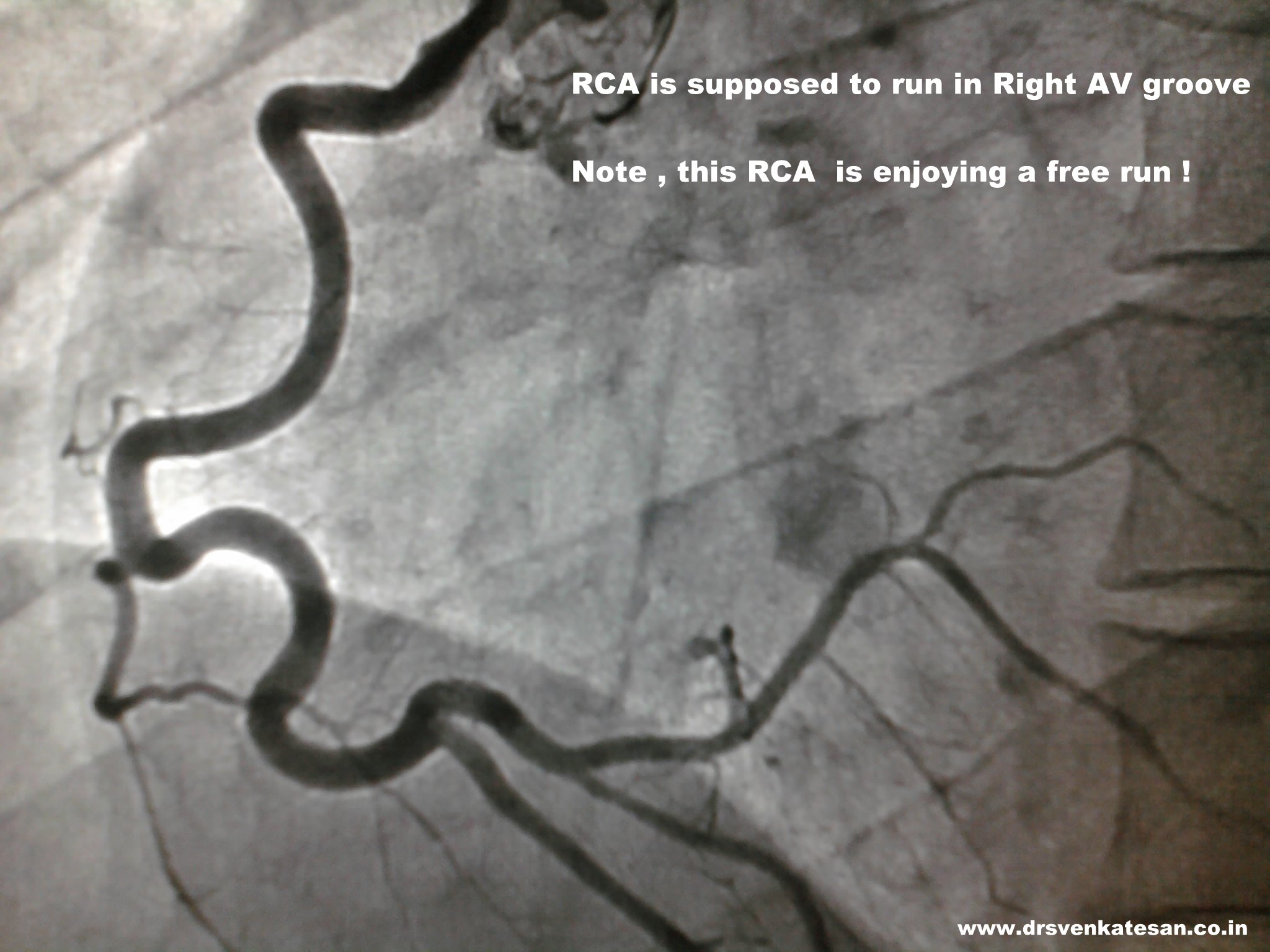 When A Coronary Artery Derails From Its Track