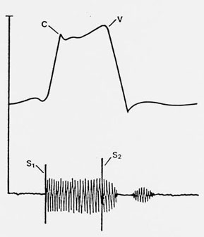 respond together with Characteristic Of EEG EOG EMG fig2 255767647 further Ornithology furthermore Genogram besides Adaptation Model. on physiological diagram