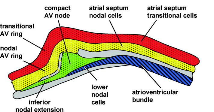 Embryological Basis Of Wpw Syndrome Av Node Complexeties Unraveled