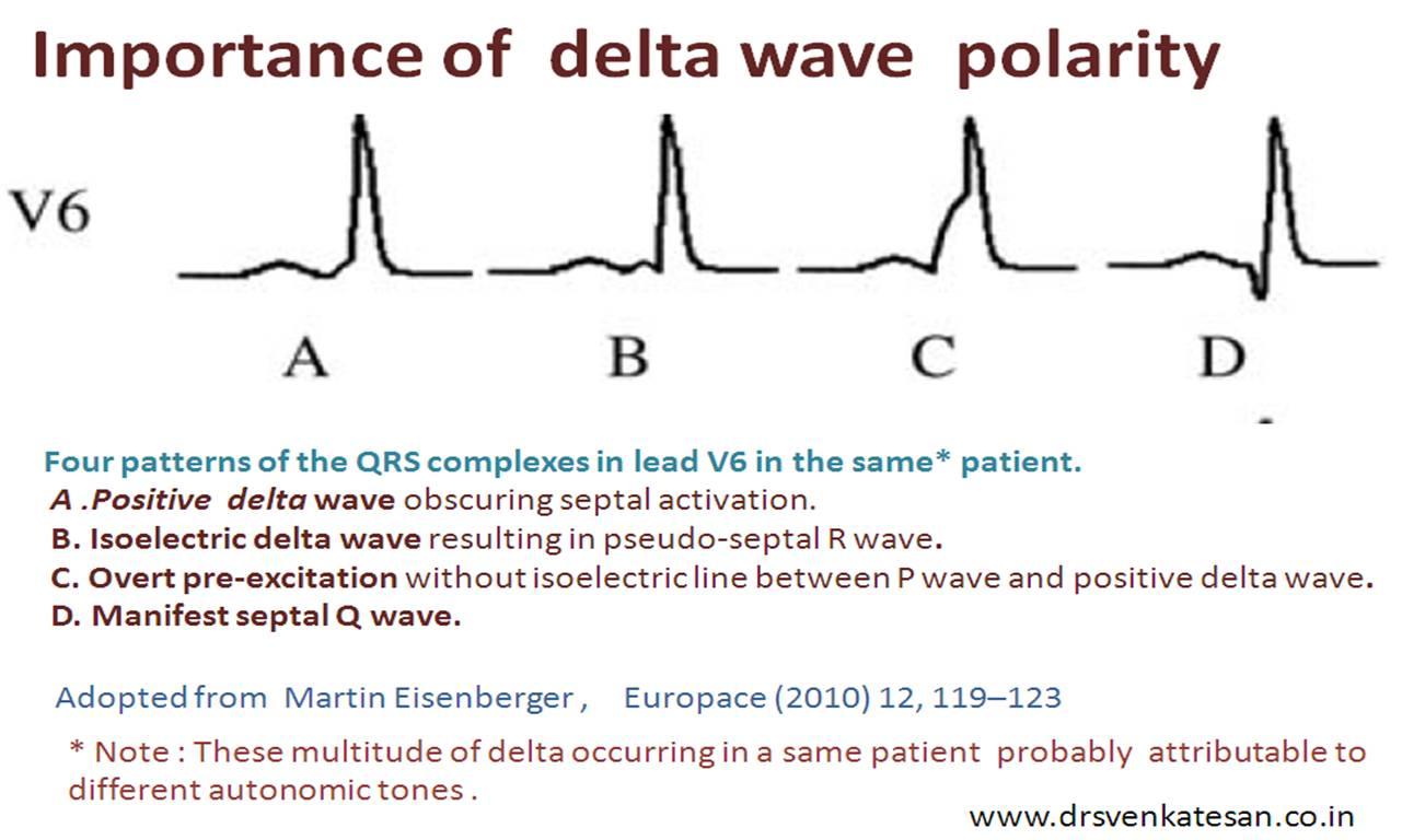 no relationship between wave and qrs complex