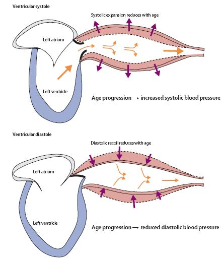 Systolic hypertension and collagen disorders