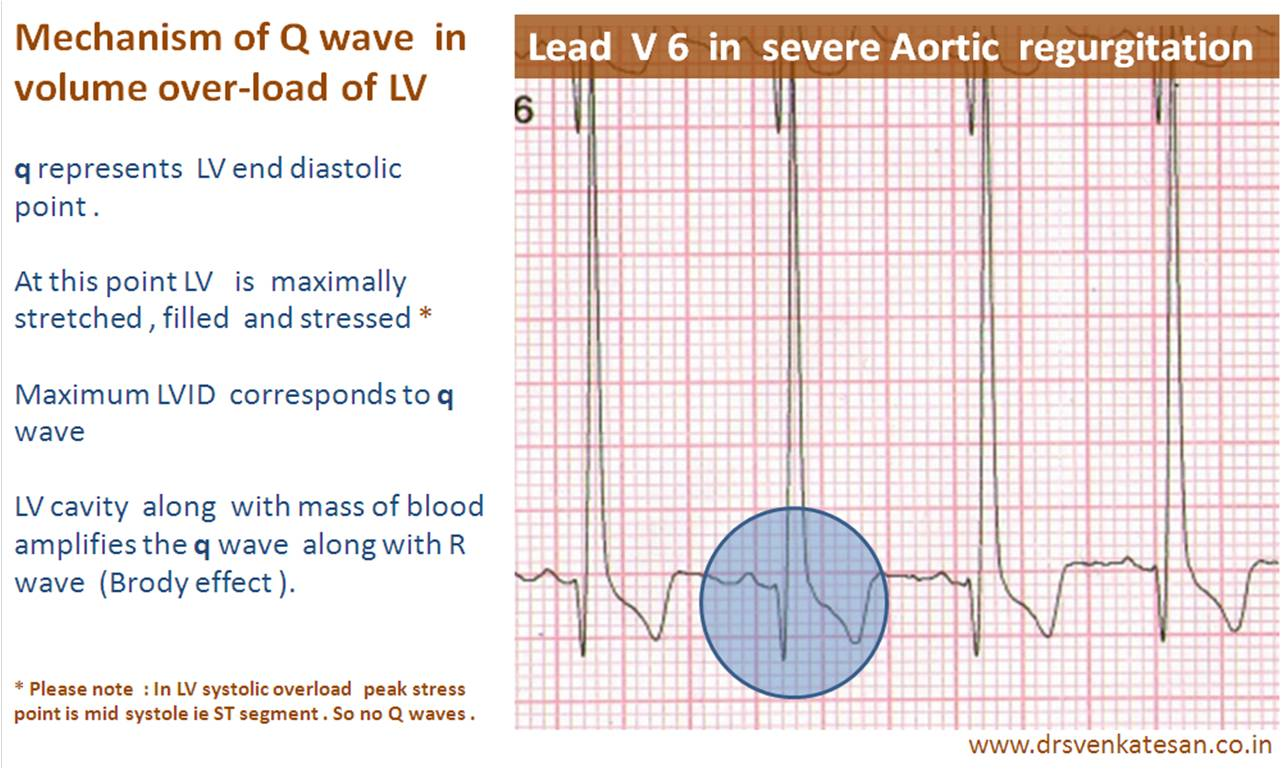 The Q wave represents the normal lefttoright depolarisation of the interventricular septum Small septal Q waves are typically seen in the left