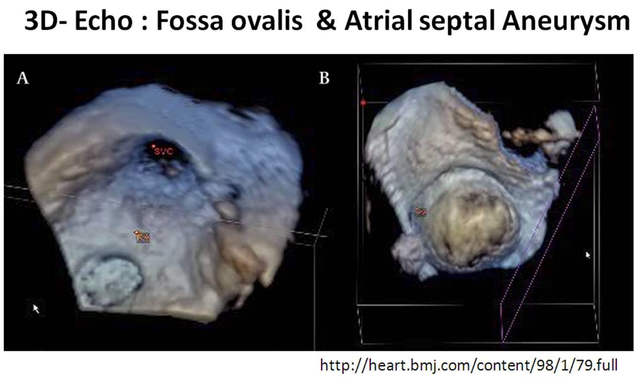 Percutaneous Treatment of Atrial Septal Aneurysm | Revista ...