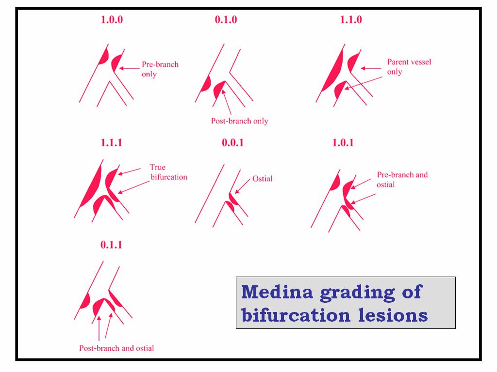 carina of coronary artery | Dr.S.Venkatesan MD
