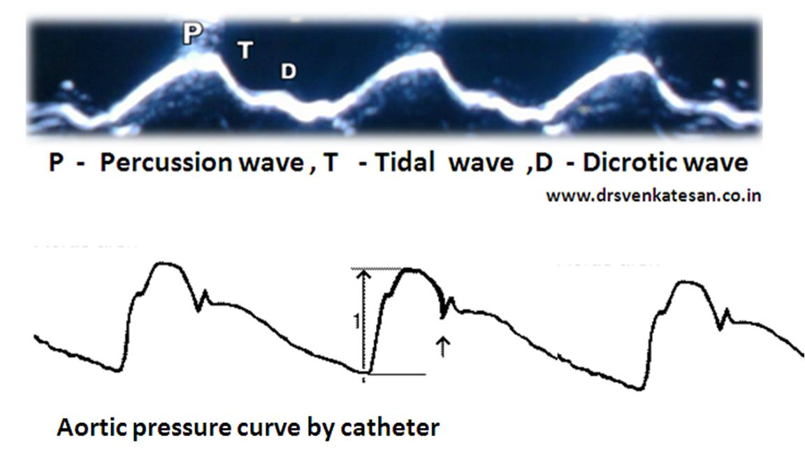 observing wave pulses essay Observing both gravitational waves and electromagnetic radiation from the catastrophic coalescence of two hyper-dense neutron stars provides we may be lucky enough to detect radiation from its surface, or maybe even pulses [of x- rays or radio waves], due to the object's extremely rapid rotation.
