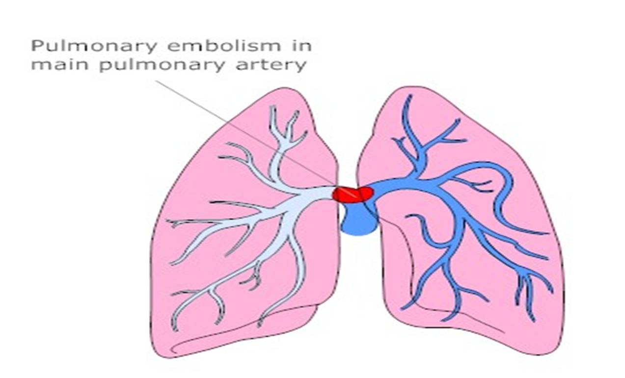 changing definitions for massive pulmonary embolism | dr.s.venkatesan md