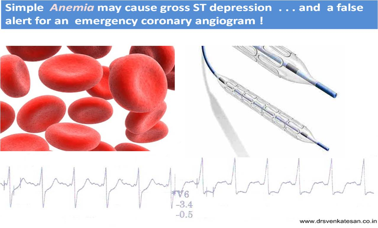 is simply anemia related