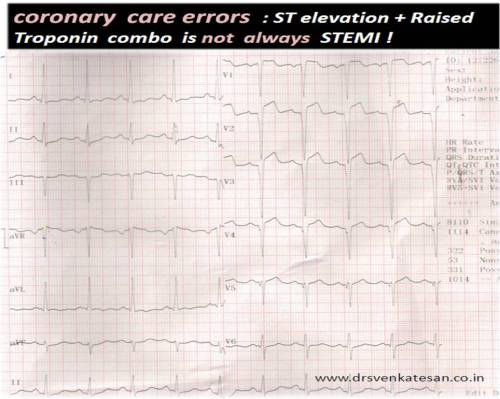 Q-LVH INCOMPLET LBBB STEMI DIFFERENTIAL DIAGNOSIS 2
